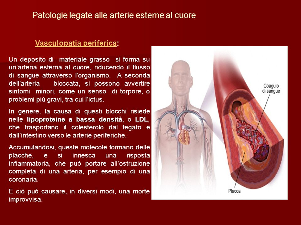Patologie legate alle arterie esterne al cuore