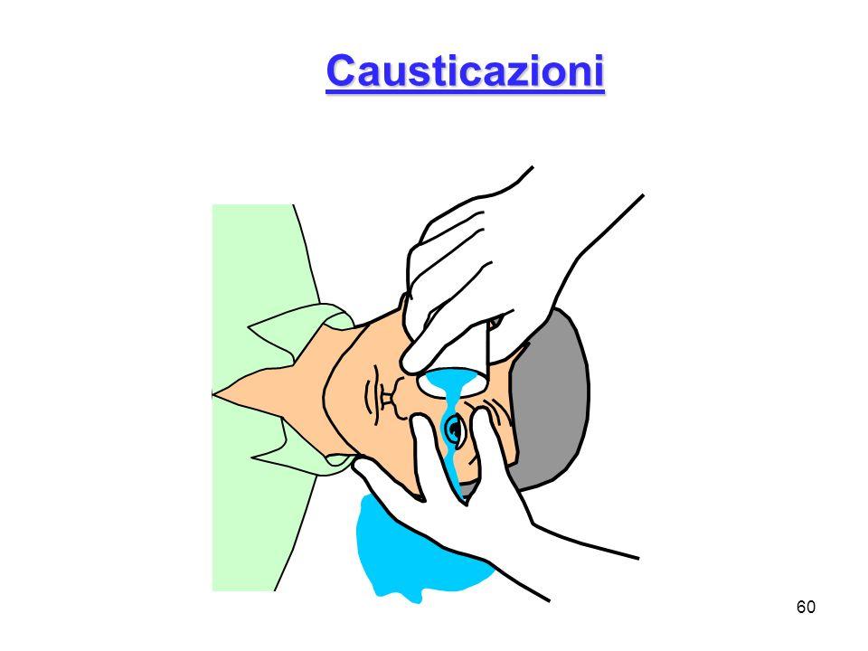 Causticazioni Quasi ogni sostanza può, ad una concentrazione di dosaggio sufficentemente elevata, portare ad una intossicazione.