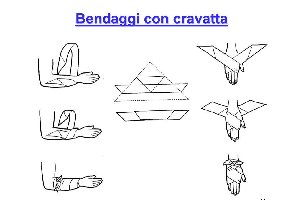 Bendaggi con cravatta