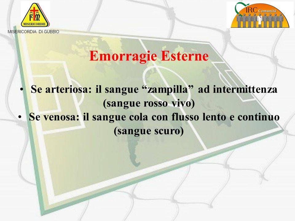 Emorragie Esterne Se arteriosa: il sangue zampilla ad intermittenza