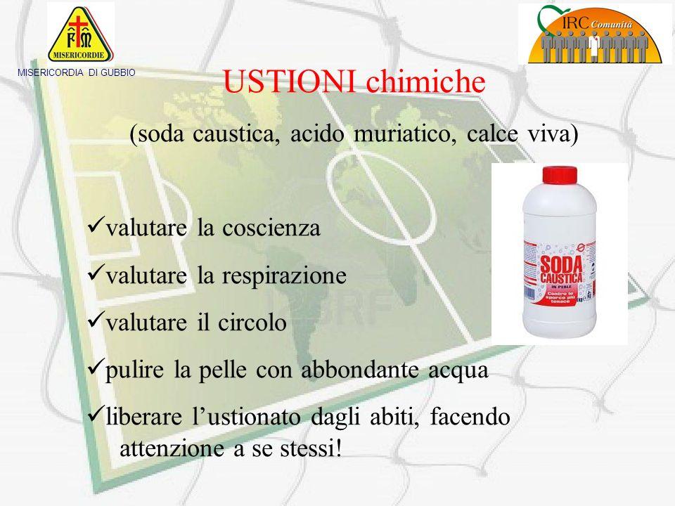 USTIONI chimiche (soda caustica, acido muriatico, calce viva)