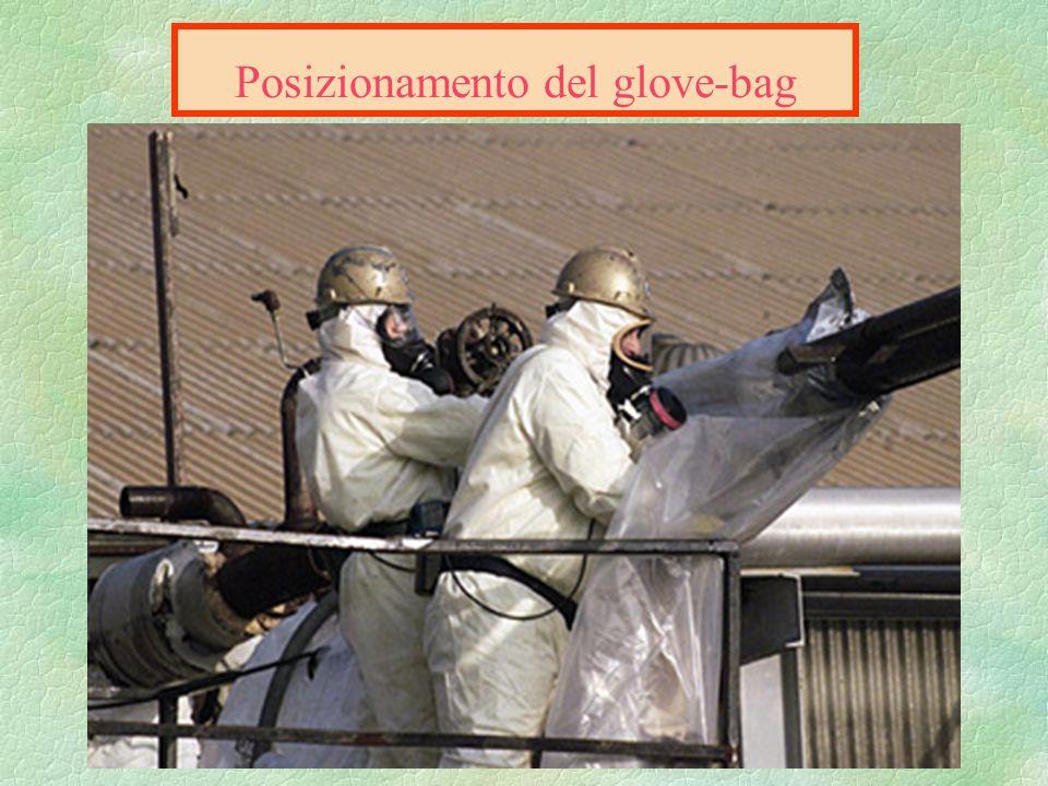 Posizionamento del glove-bag