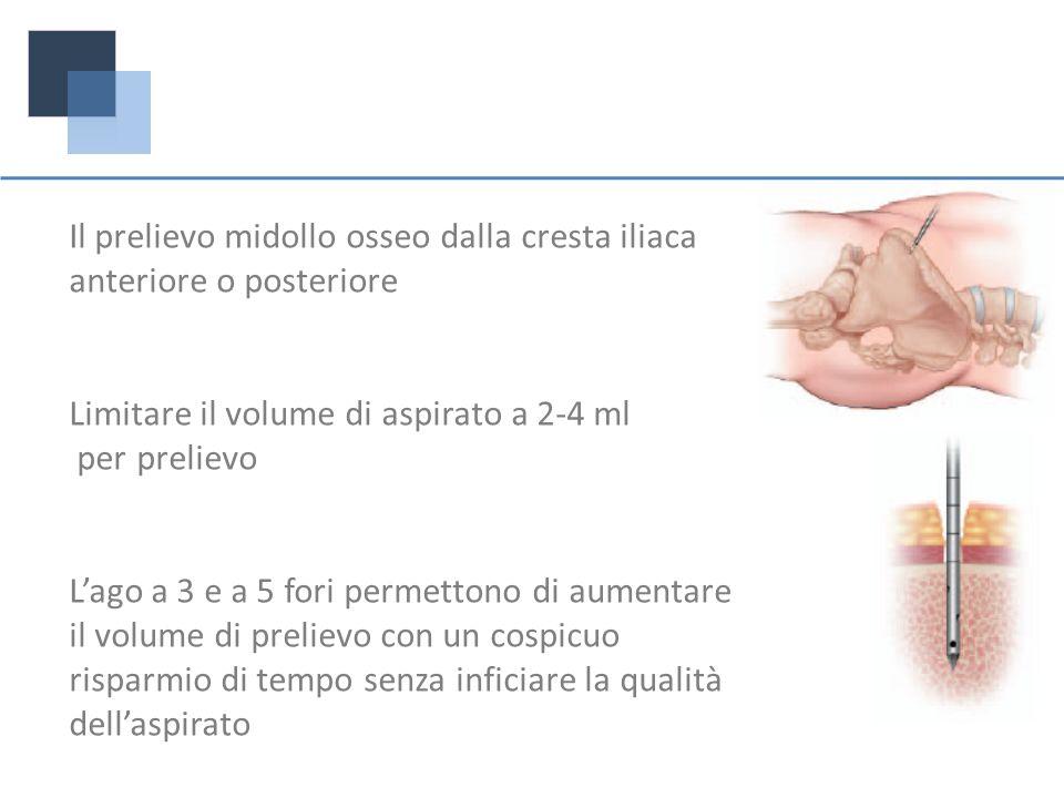 Il prelievo midollo osseo dalla cresta iliaca anteriore o posteriore