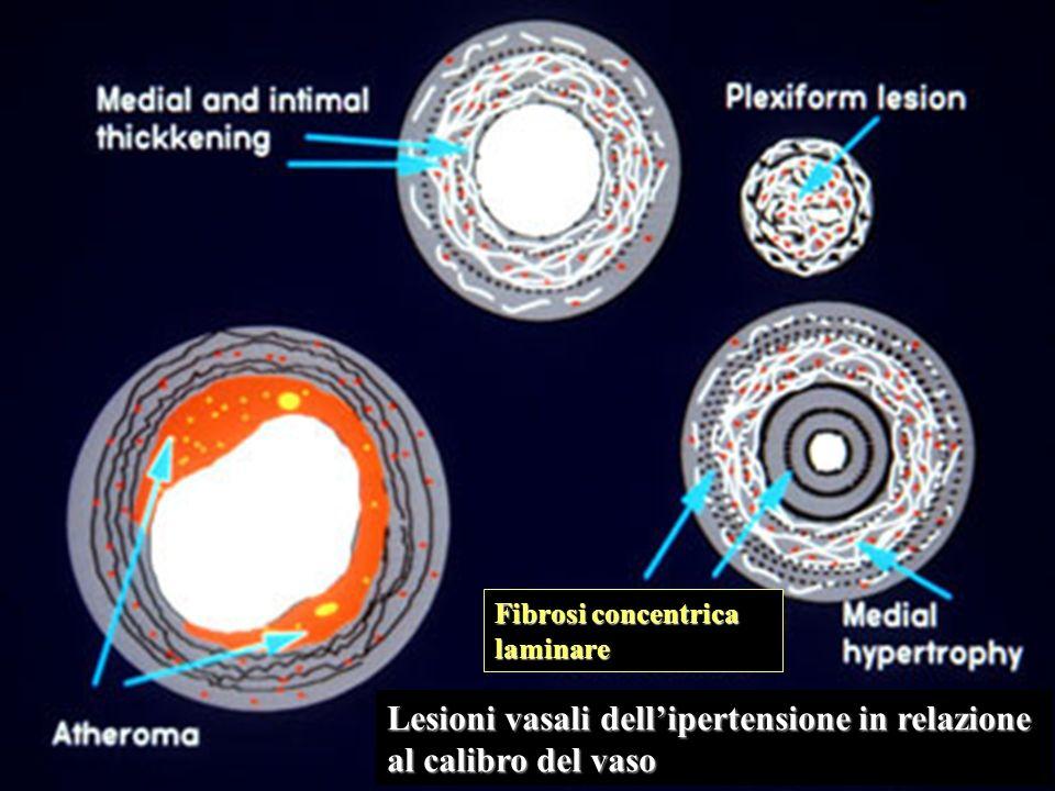 Lesioni vasali dell'ipertensione in relazione al calibro del vaso