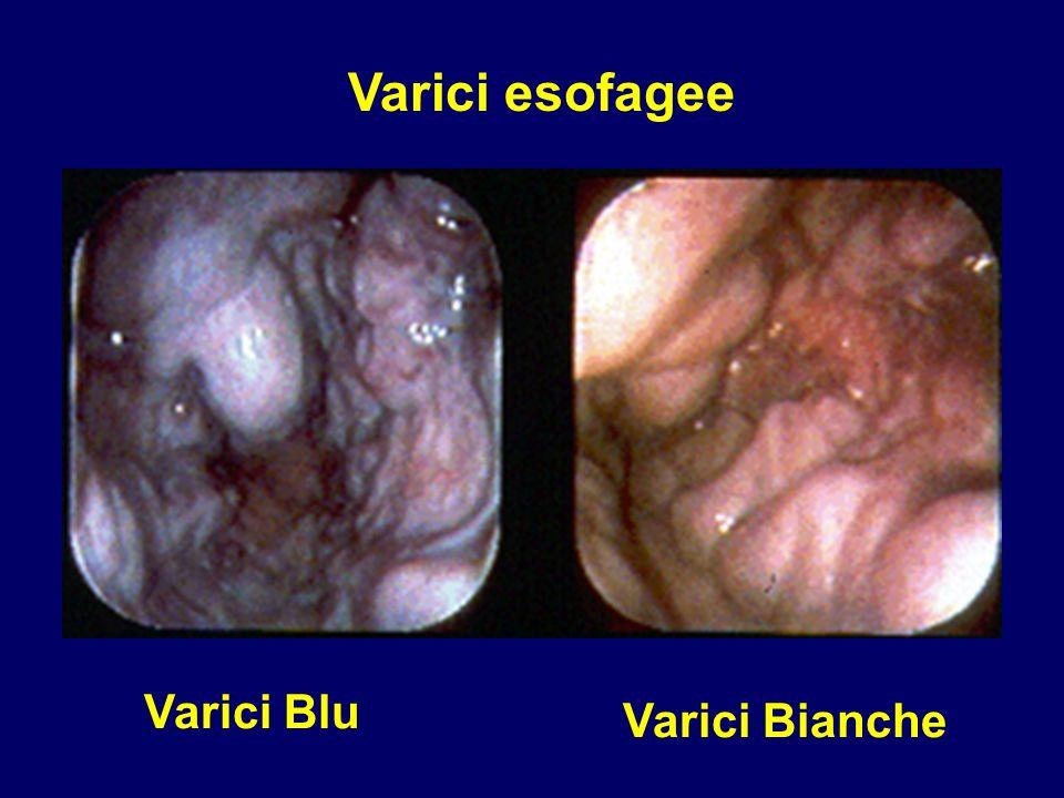Varici esofagee Varici Blu Varici Bianche