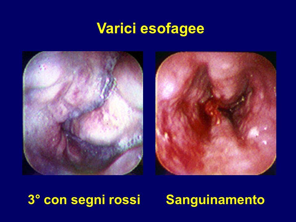 Varici esofagee 3° con segni rossi Sanguinamento