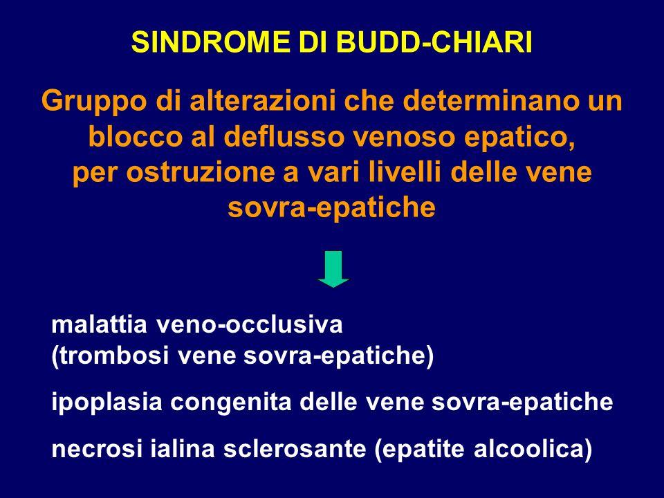 SINDROME DI BUDD-CHIARI