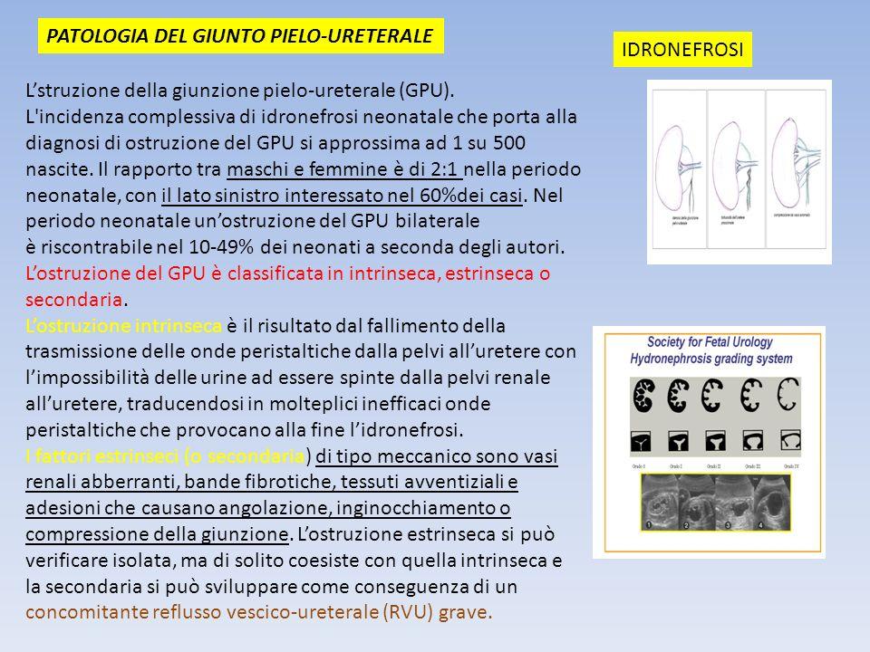 PATOLOGIA DEL GIUNTO PIELO-URETERALE