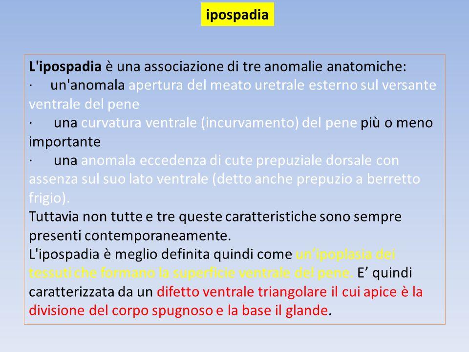 ipospadia L ipospadia è una associazione di tre anomalie anatomiche: