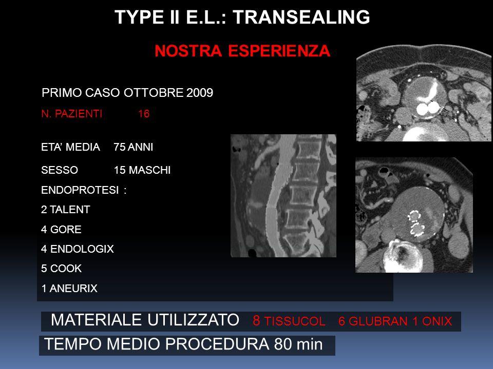 TYPE II E.L.: TRANSEALING
