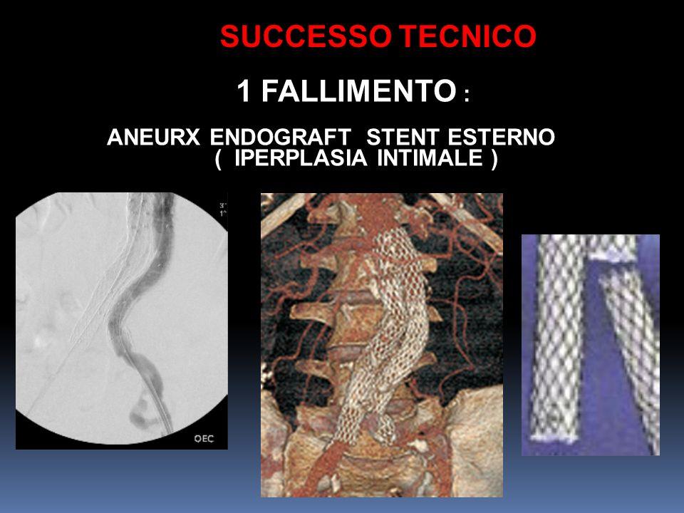 SUCCESSO TECNICO 1 FALLIMENTO : ANEURX ENDOGRAFT STENT ESTERNO