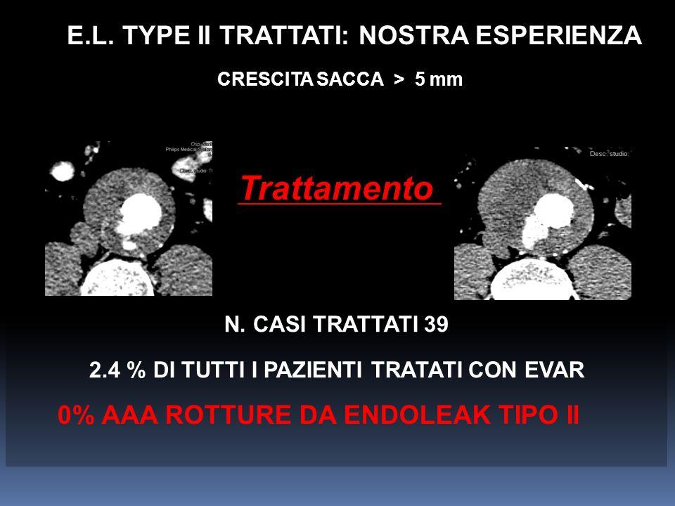 Trattamento E.L. TYPE II TRATTATI: NOSTRA ESPERIENZA