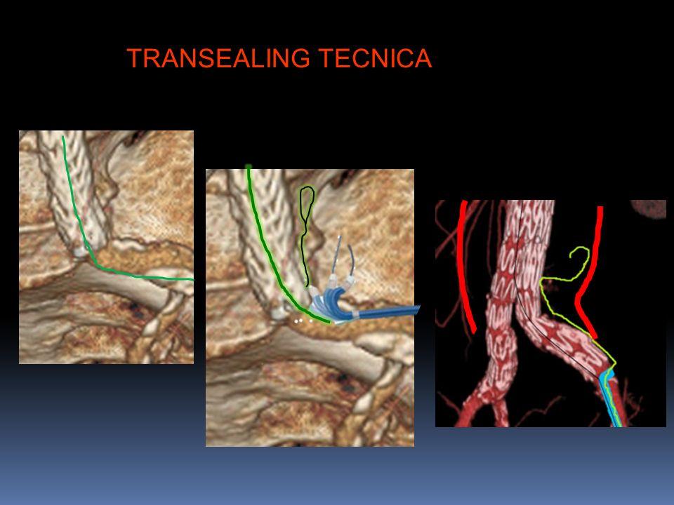 TRANSEALING TECNICA
