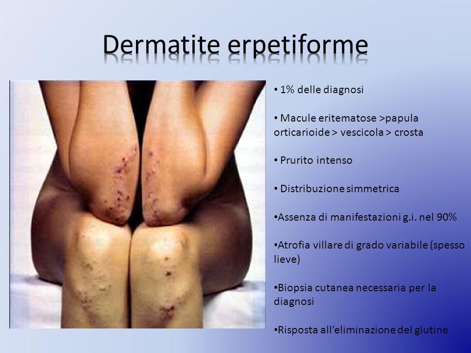 Dermatite erpetiforme