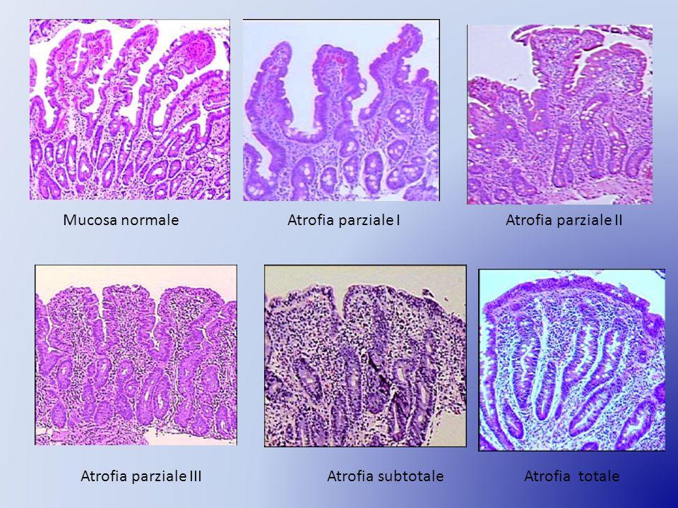 Mucosa normale Atrofia parziale I. Atrofia parziale II. Atrofia parziale III. Atrofia subtotale.