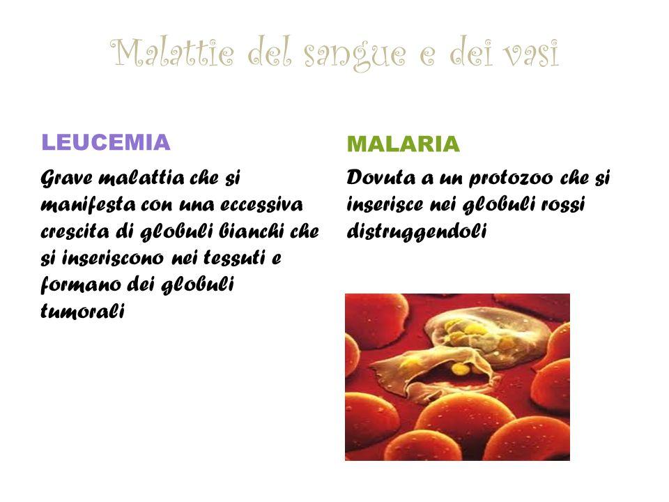 Malattie del sangue e dei vasi