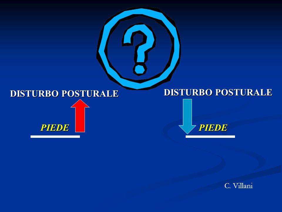 DISTURBO POSTURALE DISTURBO POSTURALE PIEDE PIEDE C. Villani