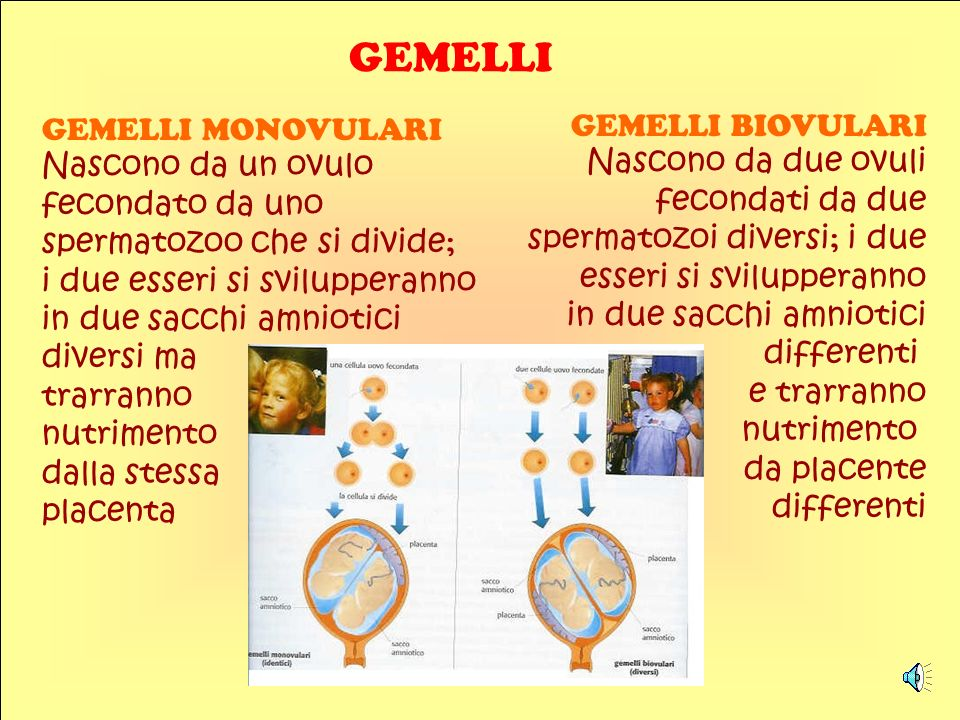 GEMELLI GEMELLI MONOVULARI Nascono da un ovulo GEMELLI BIOVULARI