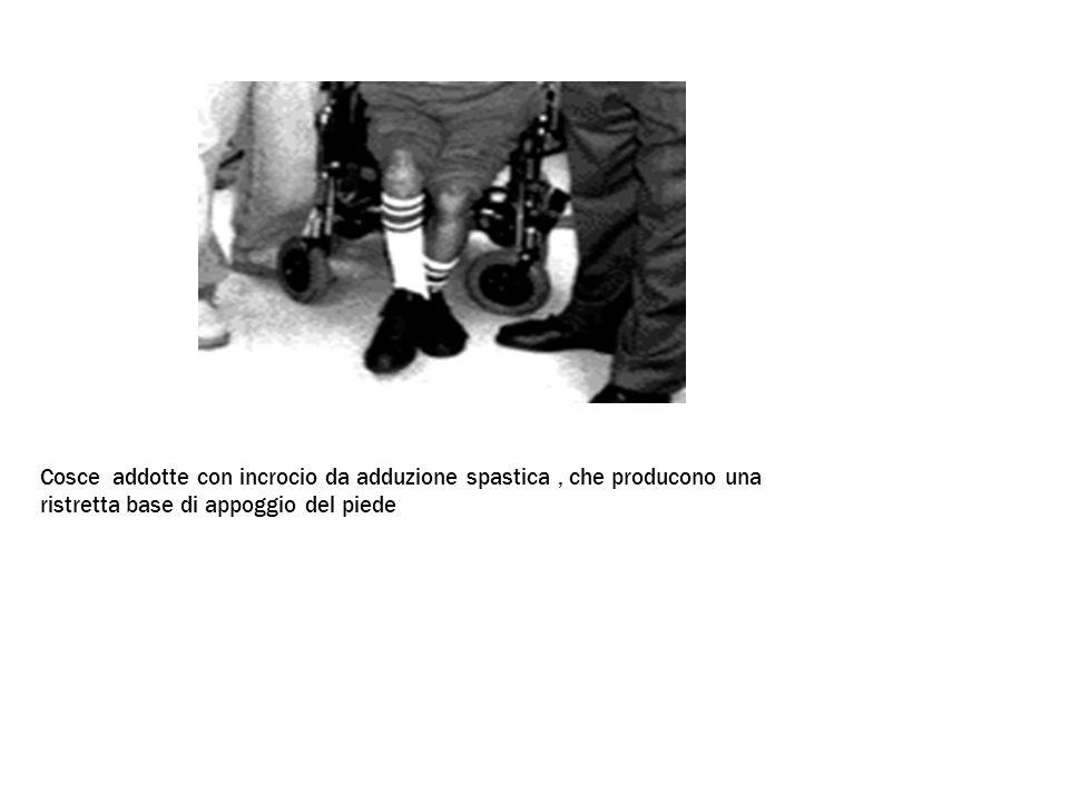 Cosce addotte con incrocio da adduzione spastica , che producono una ristretta base di appoggio del piede