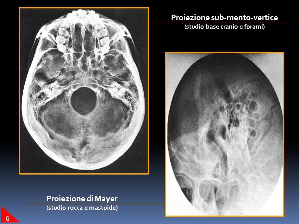 Proiezione sub-mento-vertice Proiezione di Mayer