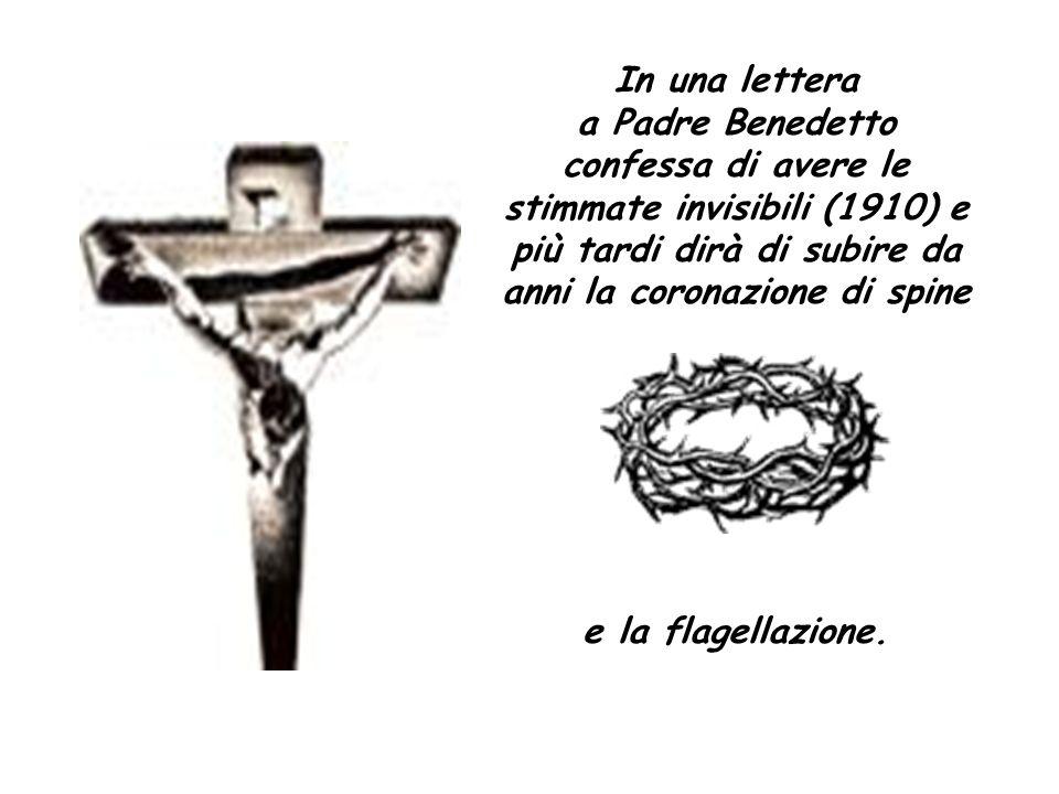 In una lettera a Padre Benedetto confessa di avere le stimmate invisibili (1910) e più tardi dirà di subire da anni la coronazione di spine.