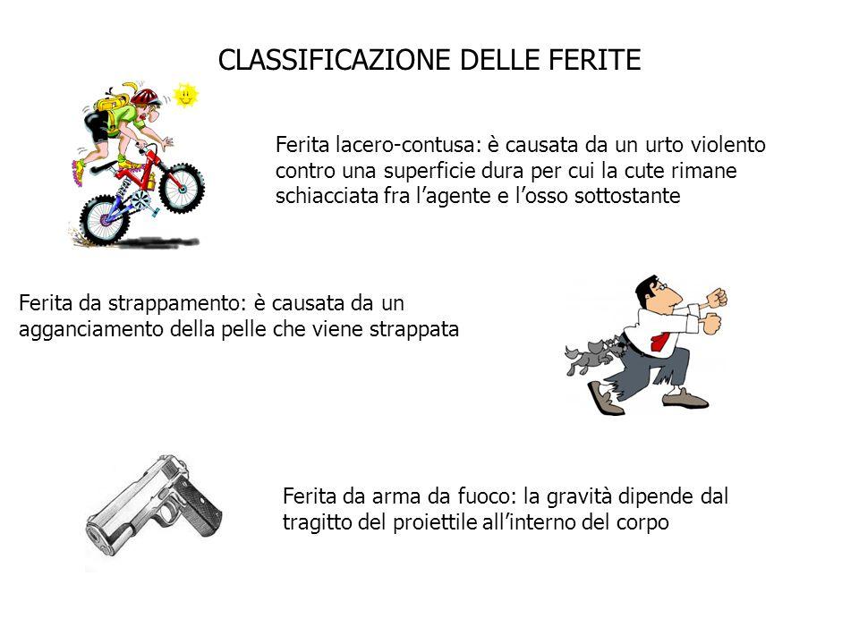 CLASSIFICAZIONE DELLE FERITE