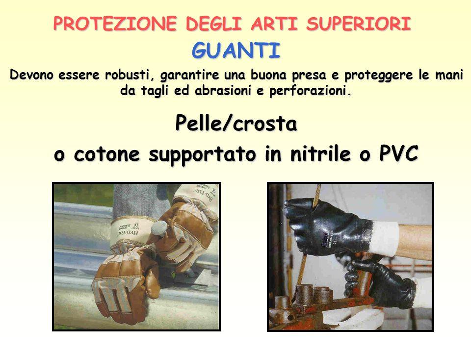 PROTEZIONE DEGLI ARTI SUPERIORI