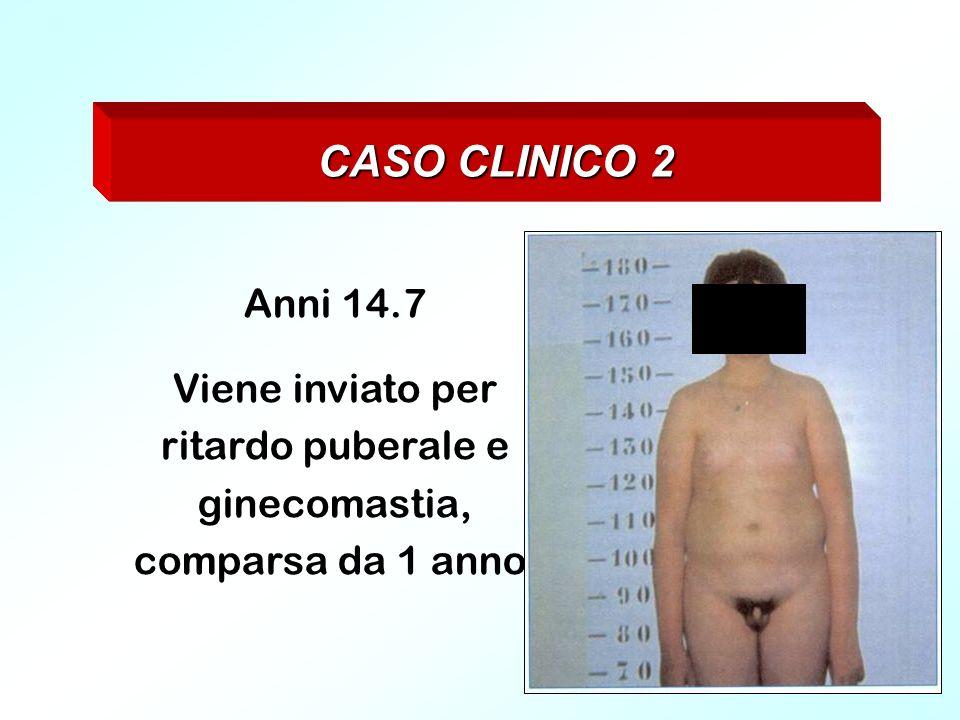 Viene inviato per ritardo puberale e ginecomastia, comparsa da 1 anno.