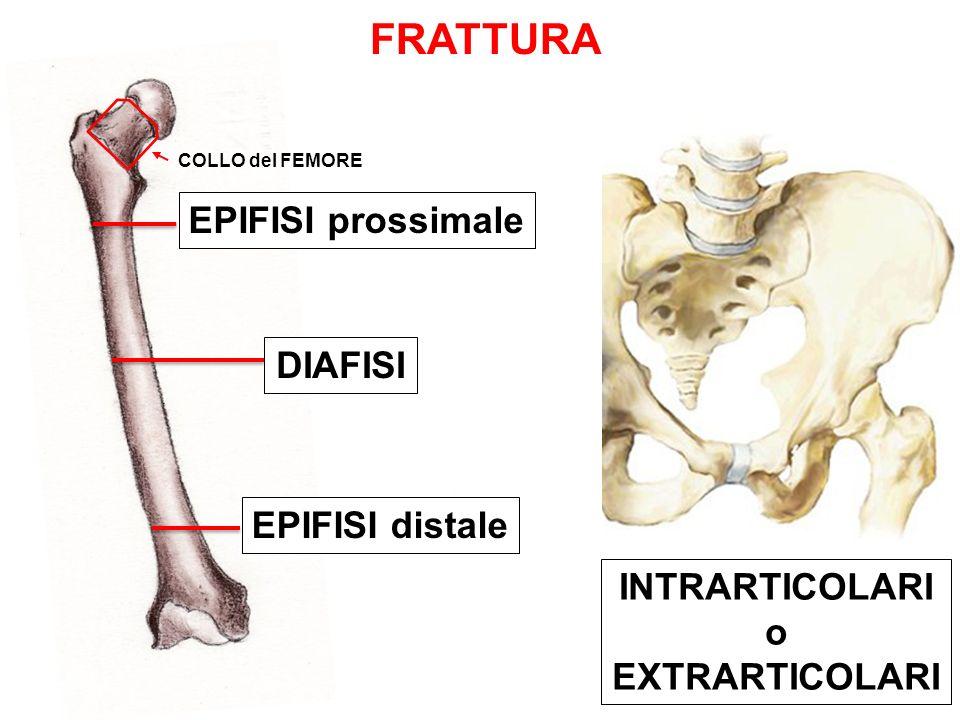 FRATTURA EPIFISI prossimale DIAFISI EPIFISI distale INTRARTICOLARI o