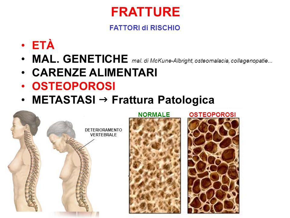 FRATTURE FATTORI di RISCHIO. ETÀ. MAL. GENETICHE mal. di McKune-Albright, osteomalacia, collagenopatie...