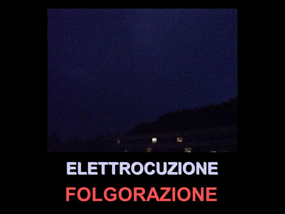 ELETTROCUZIONE FOLGORAZIONE