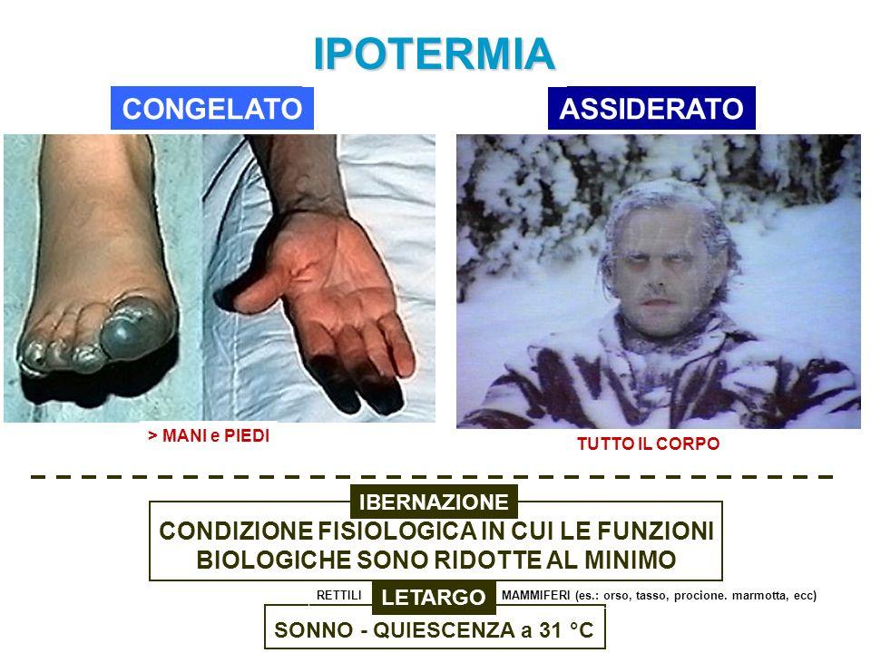 IPOTERMIA CONGELATO ASSIDERATO