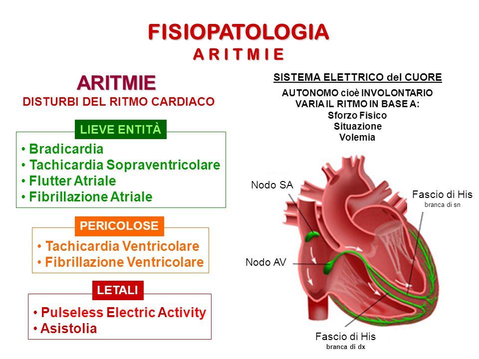 FISIOPATOLOGIA ARITMIE A R I T M I E Bradicardia