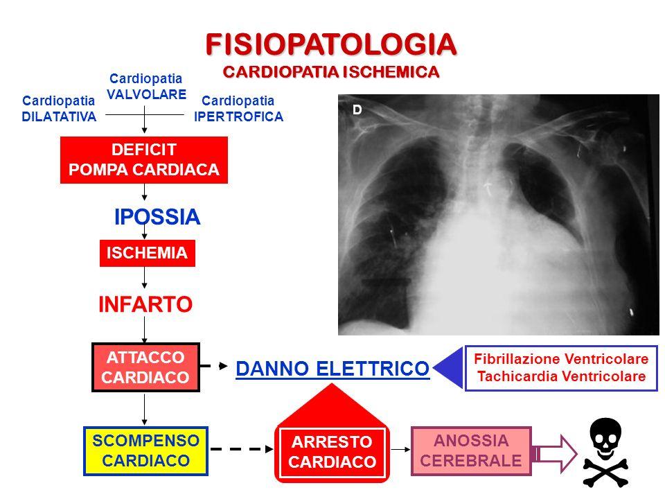 N FISIOPATOLOGIA IPOSSIA INFARTO DANNO ELETTRICO CARDIOPATIA ISCHEMICA