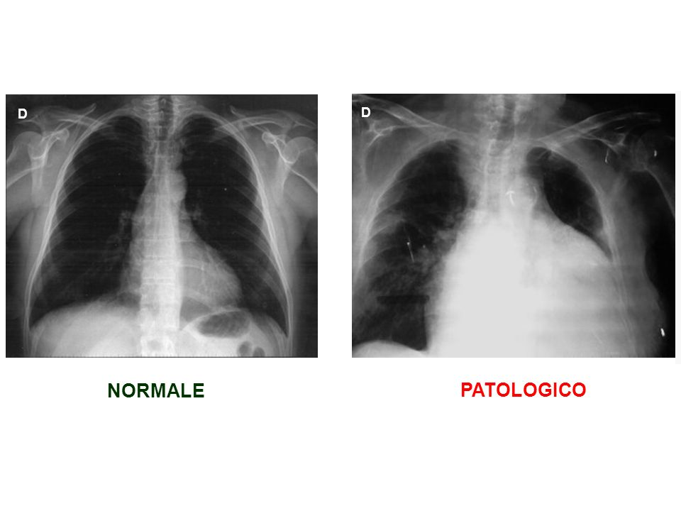 D D NORMALE PATOLOGICO