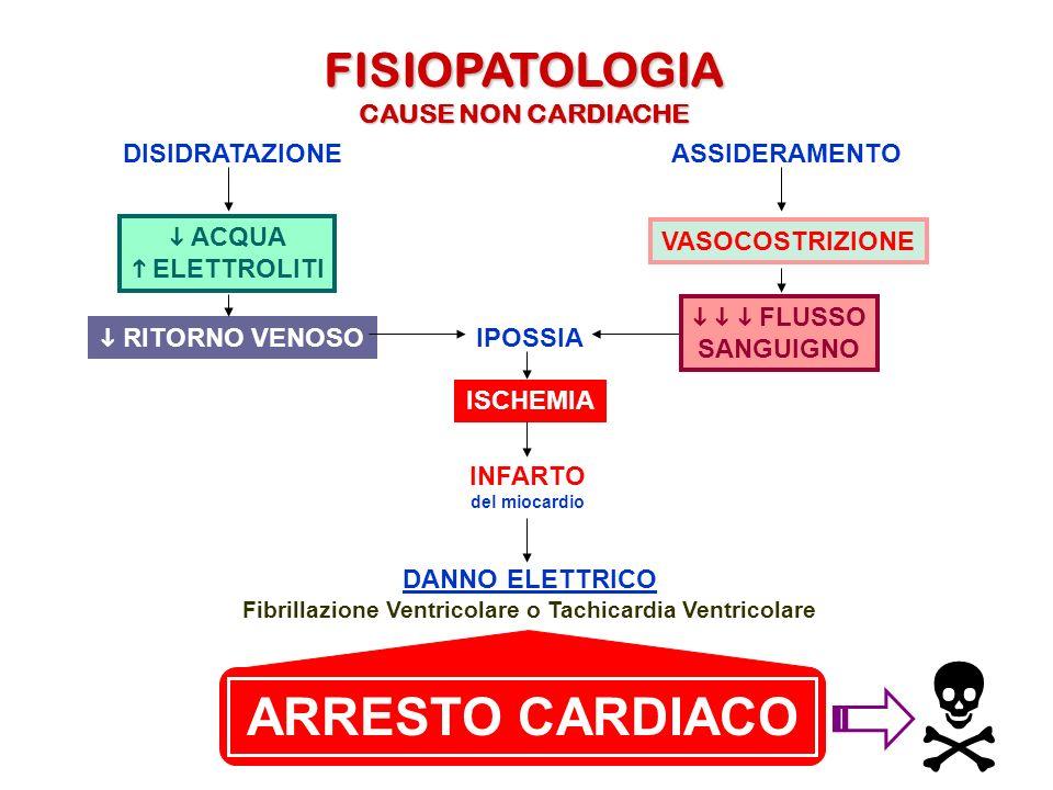 Fibrillazione Ventricolare o Tachicardia Ventricolare