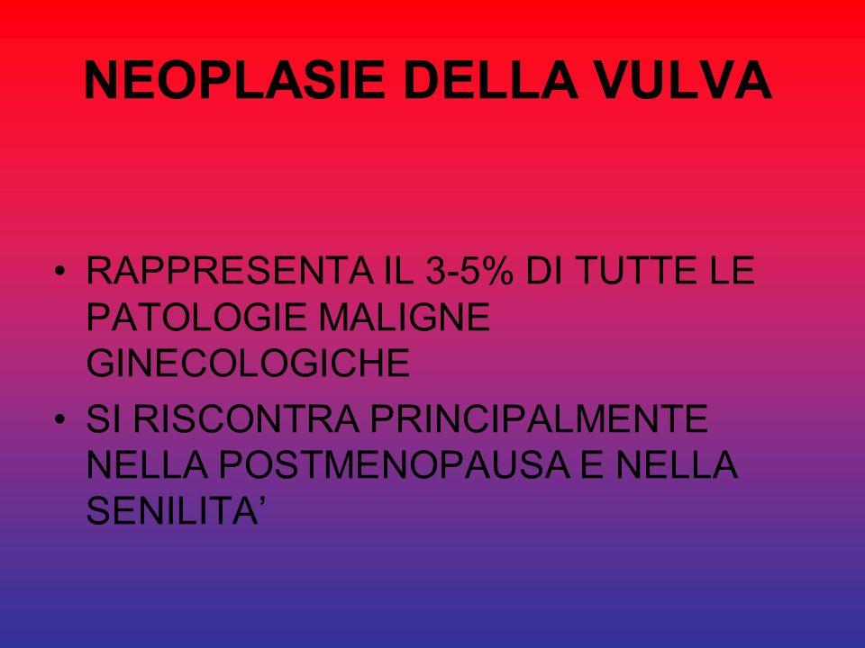 NEOPLASIE DELLA VULVA RAPPRESENTA IL 3-5% DI TUTTE LE PATOLOGIE MALIGNE GINECOLOGICHE.