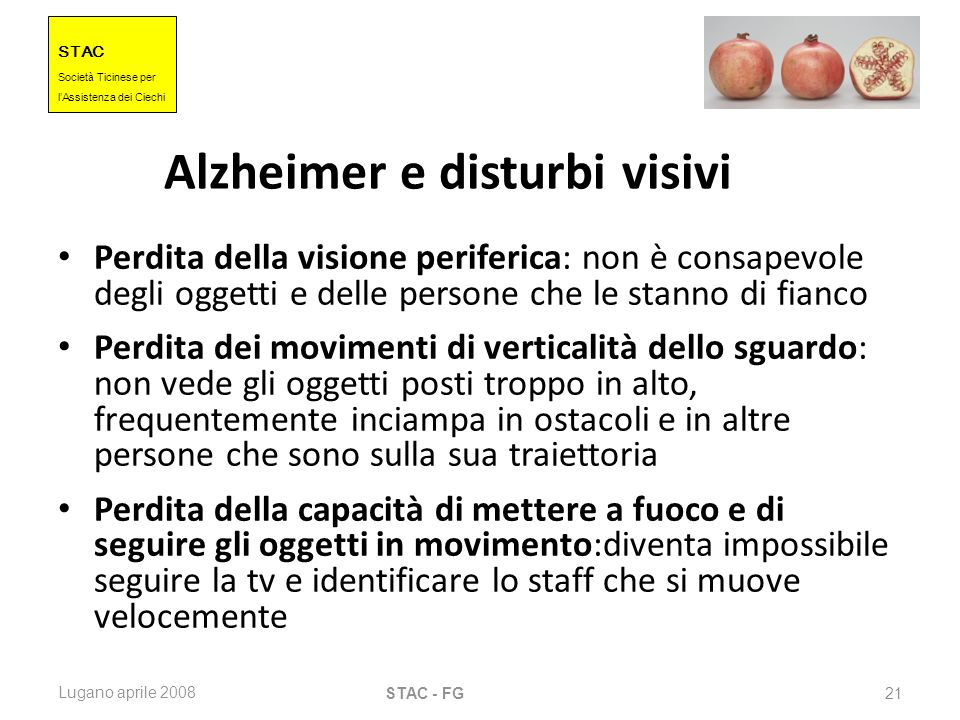 Alzheimer e disturbi visivi