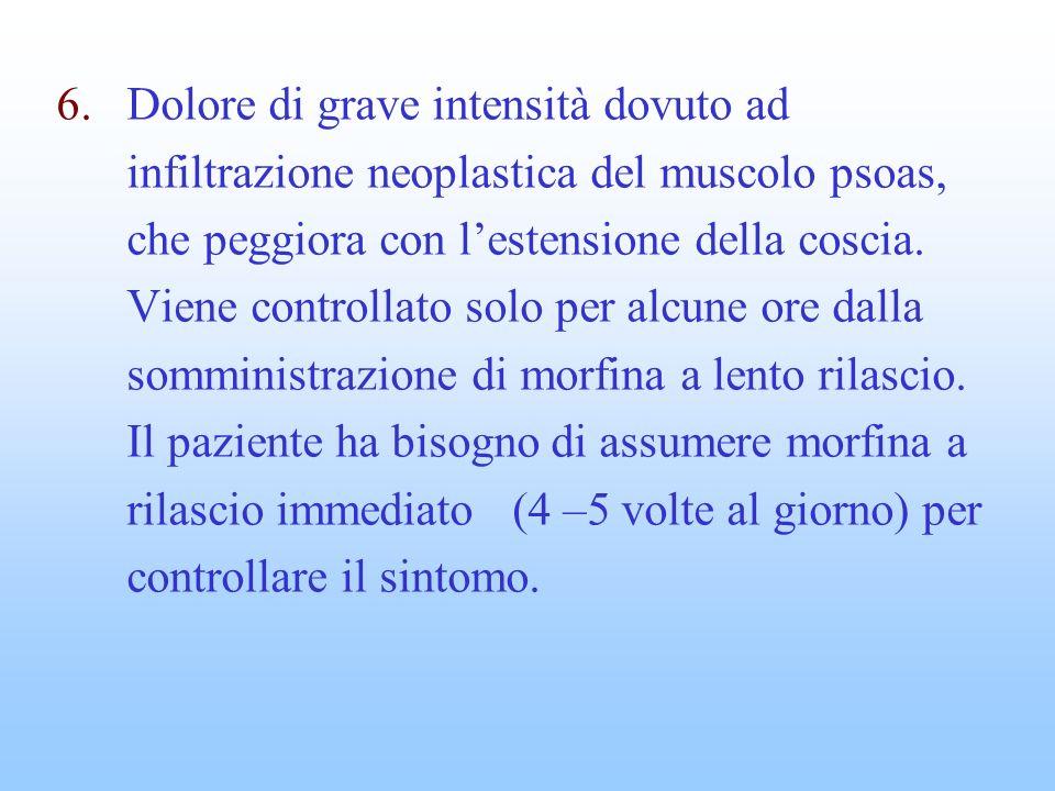 Dolore di grave intensità dovuto ad infiltrazione neoplastica del muscolo psoas, che peggiora con l'estensione della coscia.
