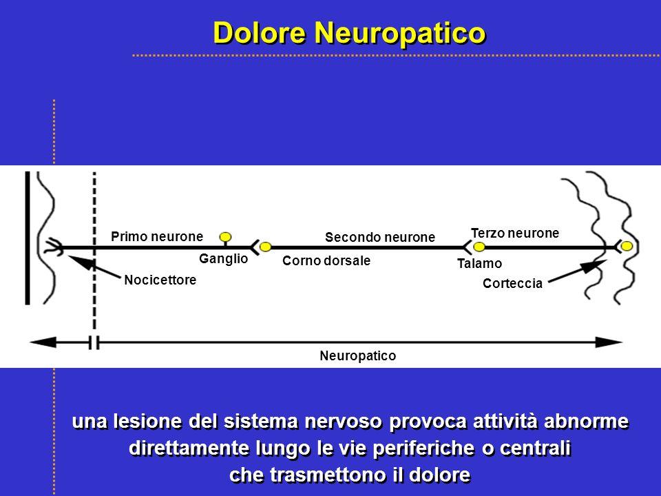 Dolore Neuropatico Neuropatico. Nocicettore. Primo neurone. Secondo neurone. Terzo neurone. Ganglio.