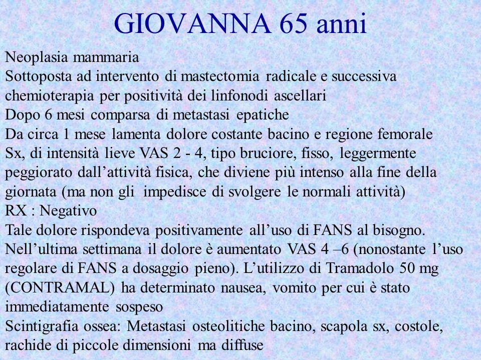 GIOVANNA 65 anni Neoplasia mammaria