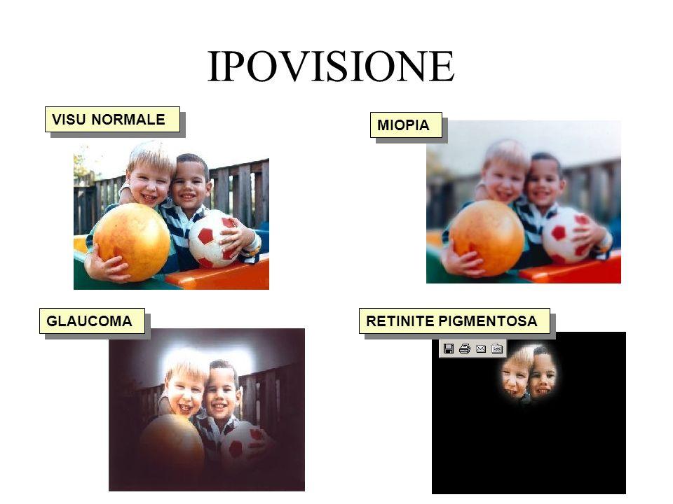 IPOVISIONE VISU NORMALE MIOPIA GLAUCOMA RETINITE PIGMENTOSA
