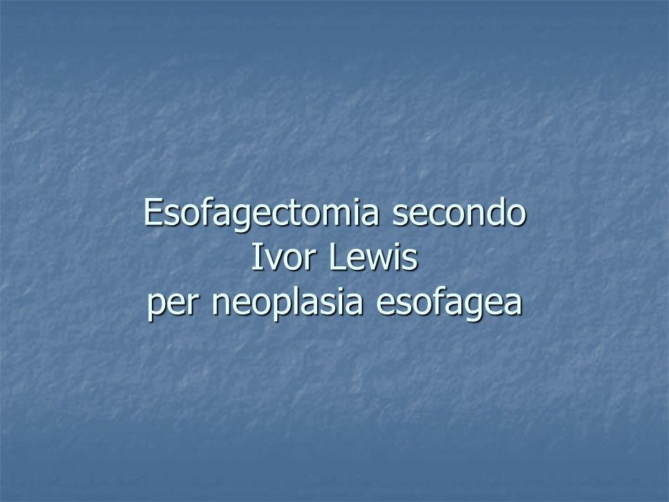 Esofagectomia secondo Ivor Lewis per neoplasia esofagea