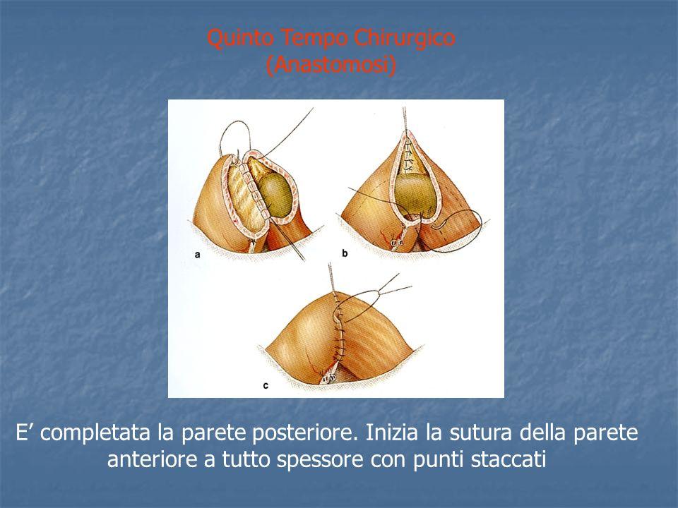 Quinto Tempo Chirurgico (Anastomosi)