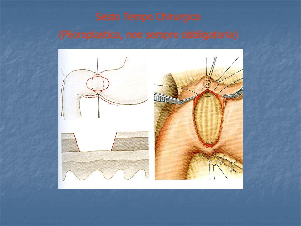 Sesto Tempo Chirurgico (Piloroplastica, non sempre obbligatoria)