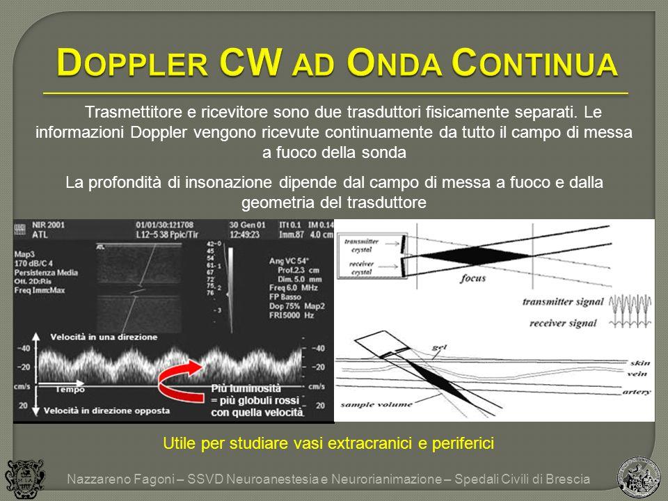 Doppler CW ad Onda Continua