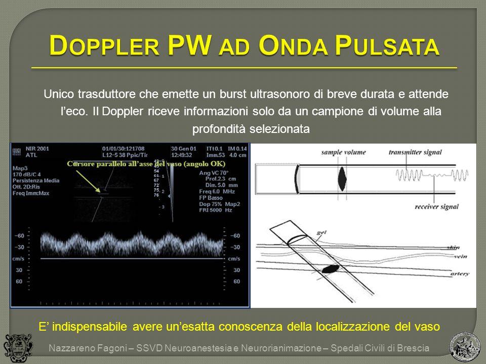 Doppler PW ad Onda Pulsata