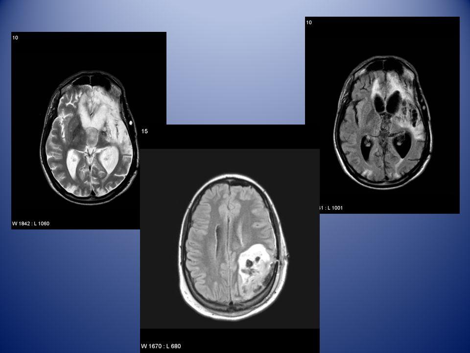 pazienti In presenza di lesioni è necessario identificare residui di aree funzionali o rimodellamenti.