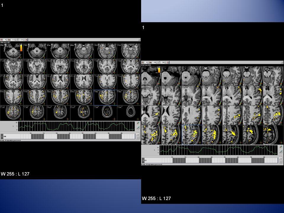 Correlazione stimolo-segnale corteccia motoria primaria