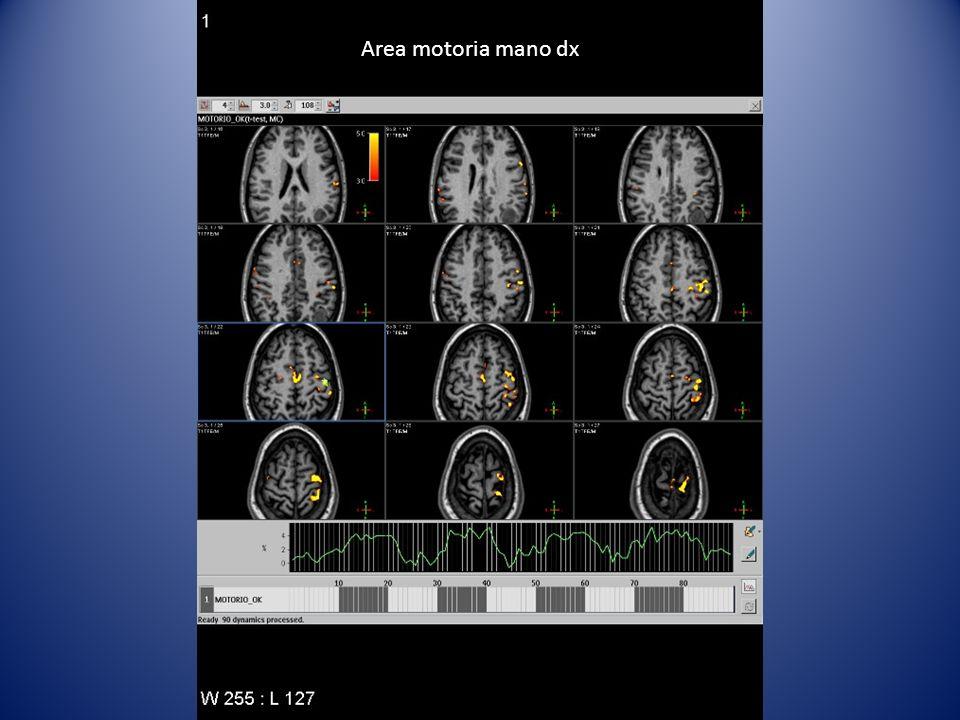 Area motoria mano dx Ricerca area motoria con finger tapping mano dx in lesione corticale in corrispondenza del solco centrale sin.